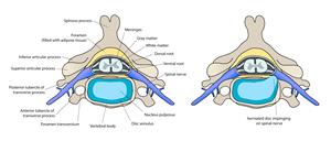 Minimally Invasive Discectomy